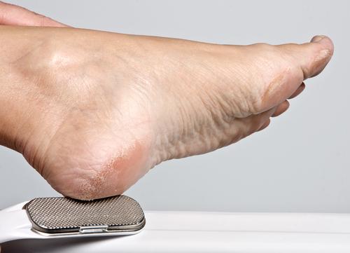 comment soigner douleurs des pieds la r ponse est sur. Black Bedroom Furniture Sets. Home Design Ideas