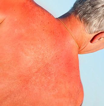 Protection solaire les ultraviolets et comment se prot ger du soleil - Soulager coups de soleil ...