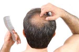 chute de cheveux que faire
